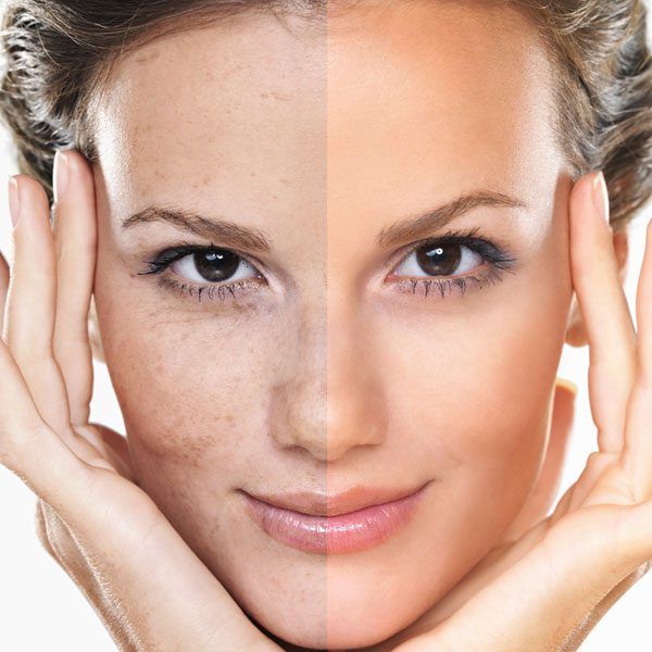 laser skin clinic adelaide treatments