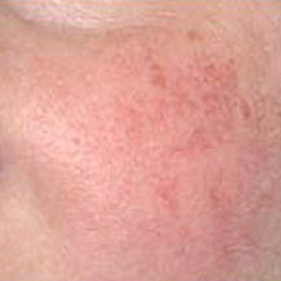 results facial veins treatments