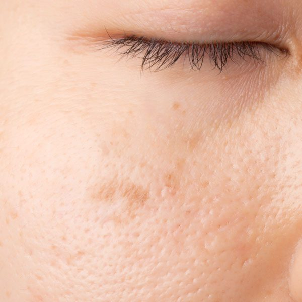 age spots liver spots freckles treatments