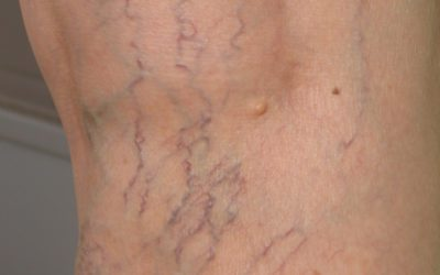 Sclerotherapy: Treatment for Spider Veins