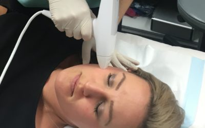 All About Venus Viva Nano-Fractional RF