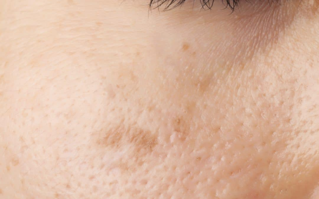 Will Removing Skin Lesions With a Laser Leave a Scar? Understanding Laser Treatments
