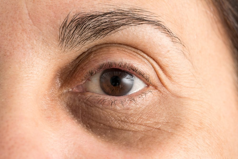 Sunken Eyes: Causes and Treatments
