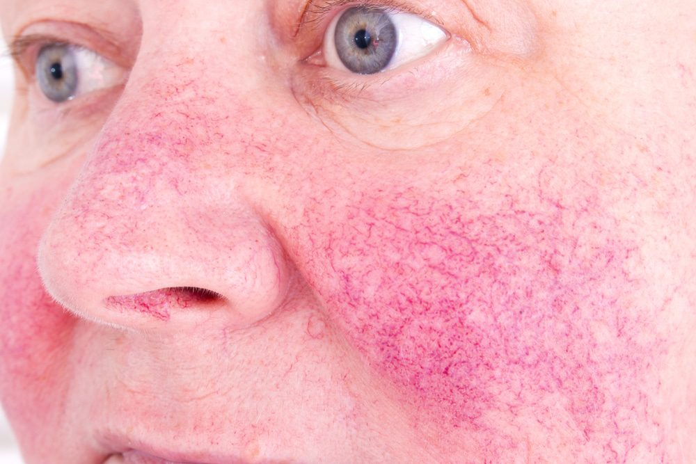 Cosmetic Procedures to Treat Rosacea