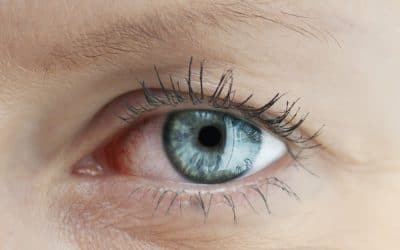 Non-Surgical Eyelid Procedures For a Younger Appearance