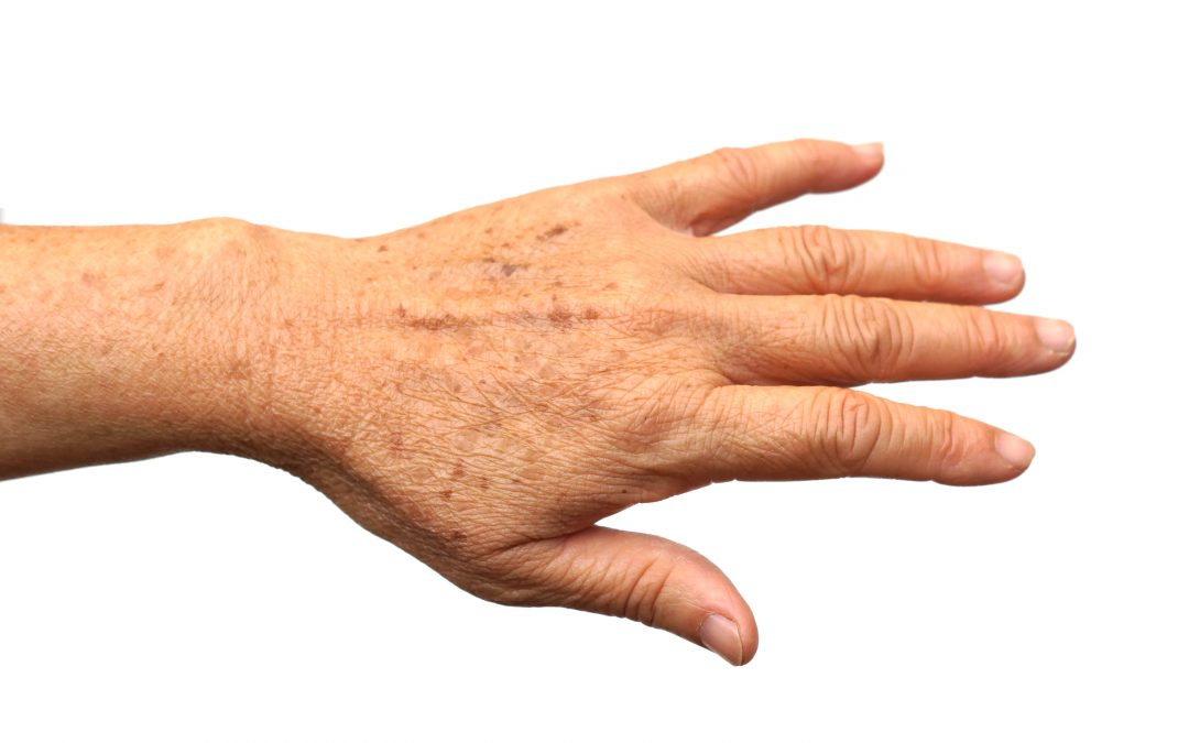 How to Combat Aging Hands
