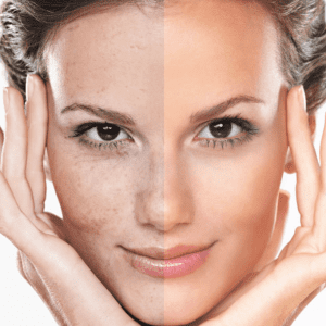 Types of Skin Rejuvenation Treatments | Laser Skin & Vein Clinic in Adelaide