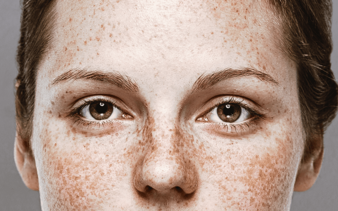 Freckles, What Can Be Done?
